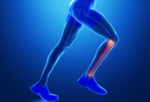 Clinica_MTS_Fisioterapia_Periostitis_Tibial
